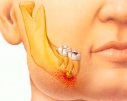 El Abceso dental