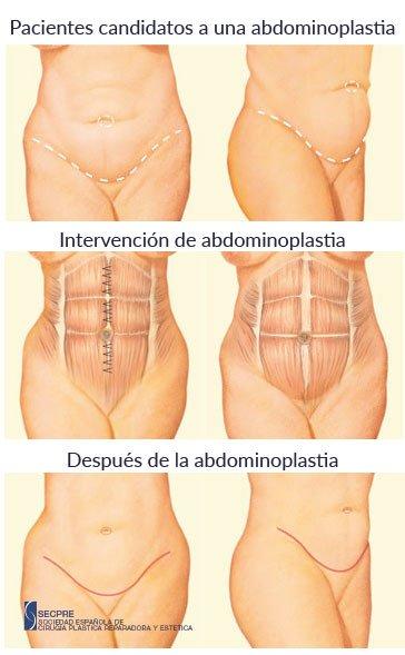 Cirugía de Abdominoplastia en Madrid