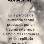 abrasión dental tratamiento
