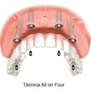 Implantes dentales con técnica All on Four