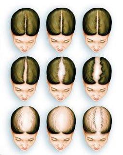 Solución a la Alopecia androgenética femenina