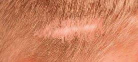 Soluciones para la alopecia cicatrizal fibrosante - España
