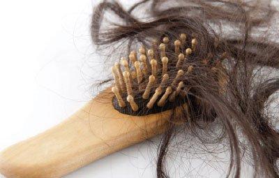 La Alopecia difusa