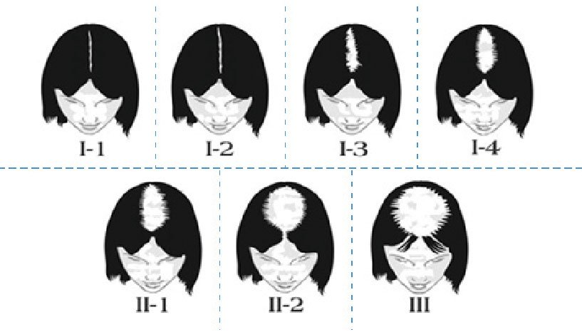 Alopecia en mujeres - Escala Ludwig