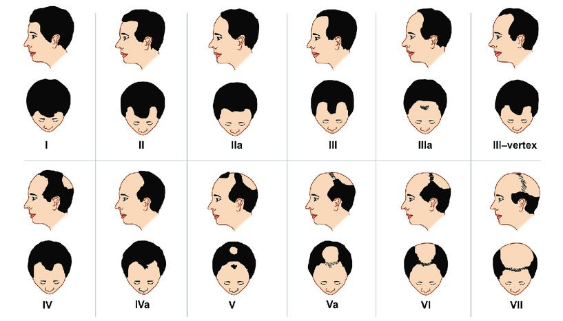 Alopecia Hombres - Escala de Norwood-Hamilton