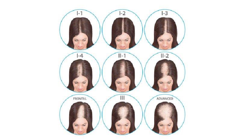 Alopecia en mujeres - Escala Savin