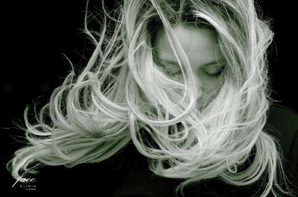 La Alopecia en la mujer