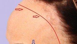 Alopecia fibrosante en mujeres y hombres, tratamiento en Madrid, España