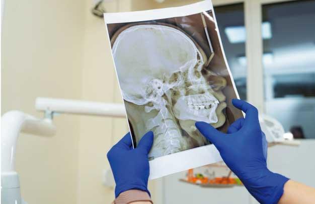 Atrofia en los maxilares tratamiento Madrid