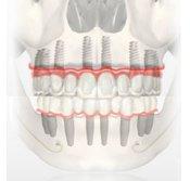 Atrofia maxilar leve