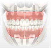 Atrofia maxilar severa
