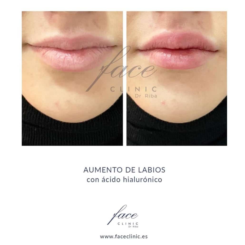 Aumento de labios antes y después - Madrid