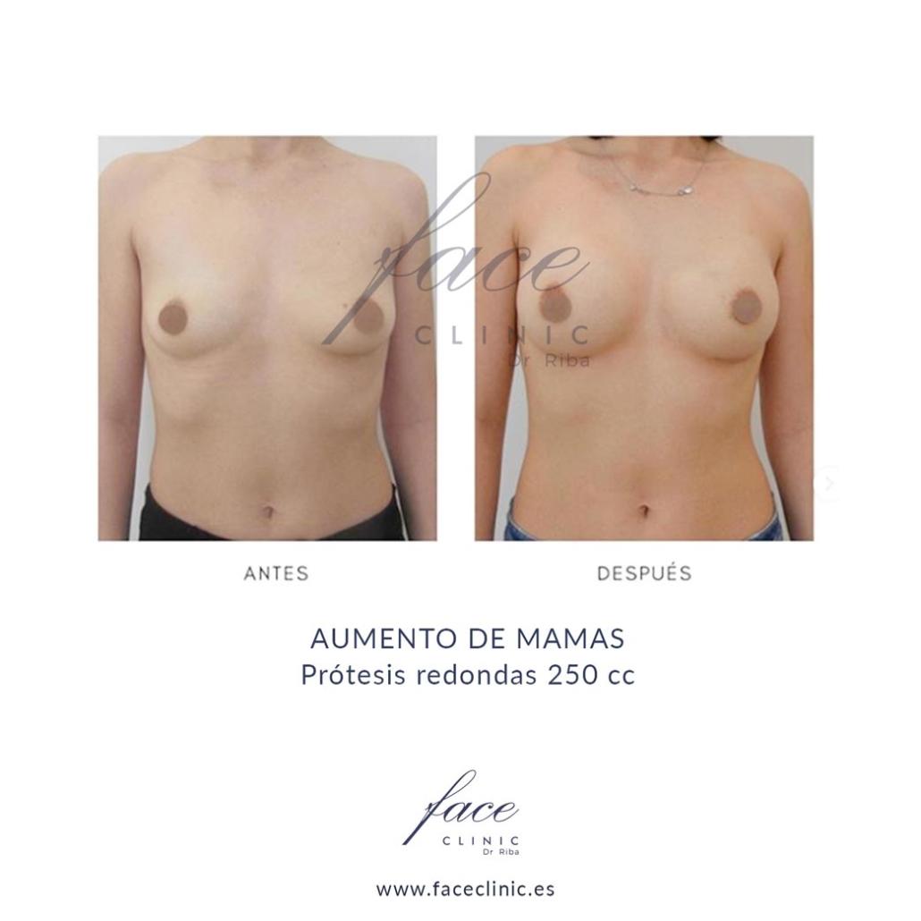 Aumento de mamas protesis redondas