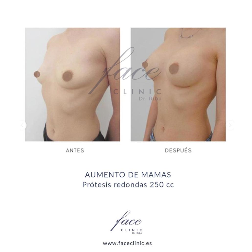 Aumento de mamas con protesis redondas de 250 cc