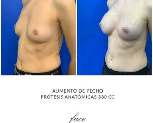 Resultados Aumento de pecho antes y después - caso1a