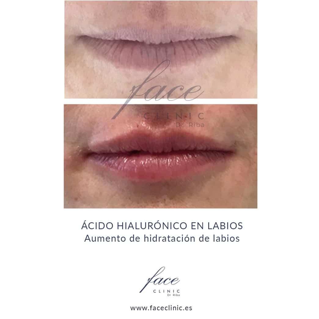 Aumento labios Madrid