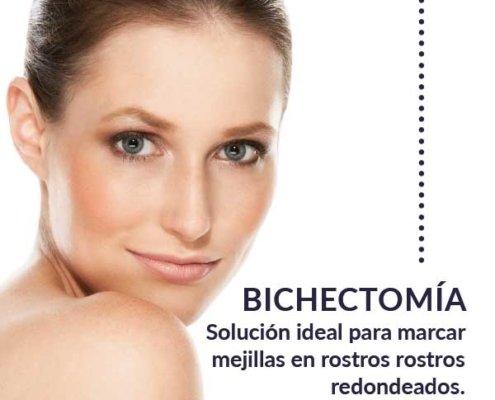 Bichectomia en Madrid