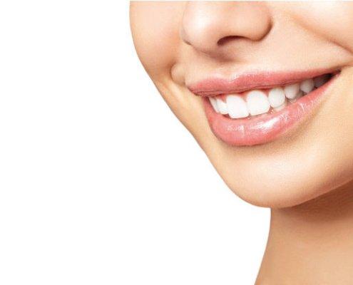 Opiniones sobre blanqueamiento dental