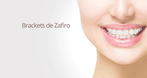 Brackets de Zafiro Madrid