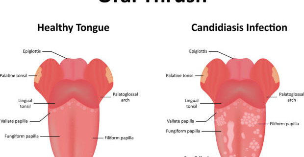 Candidiasis Oral tratamiento