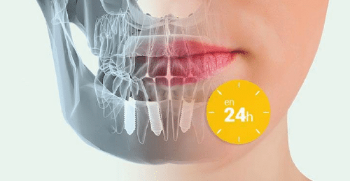 Carga inmediata en implantes dentales Madrid