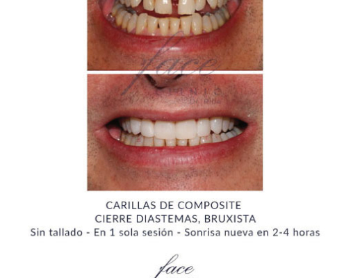 Carillas dentales antes y despues - Caso 1
