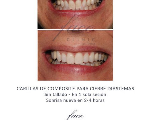 Carillas dentales antes y despues - Caso 2