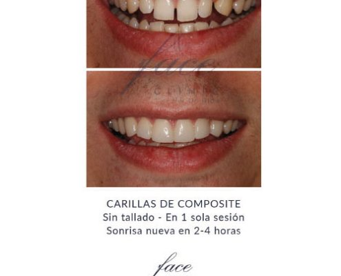 Carillas dentales antes y despues - Caso 3