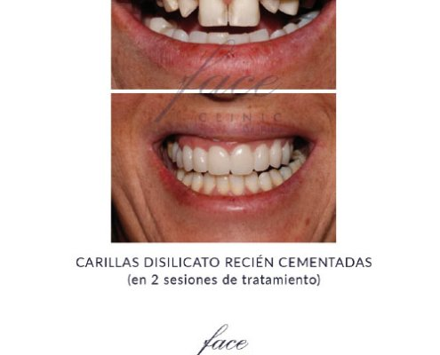 Carillas dentales antes y despues - Caso 4