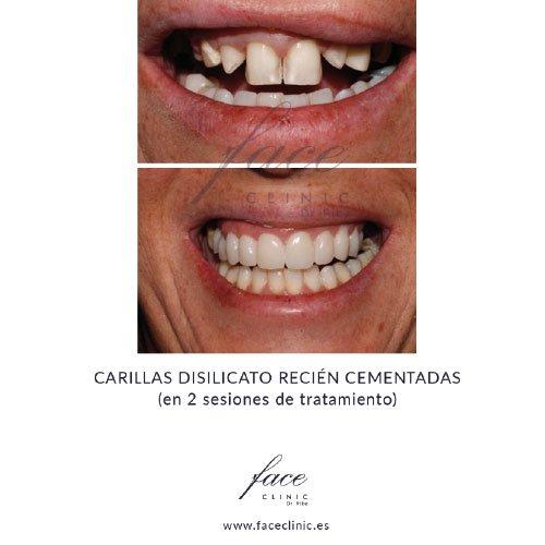 Carillas dentales antes y despues - Caso 4