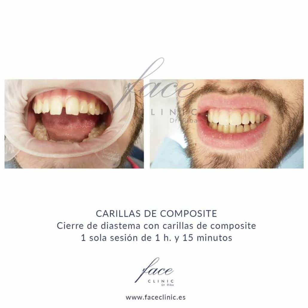 Carillas dentales Huelva