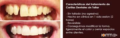 Las Carillas dentales sin tallado