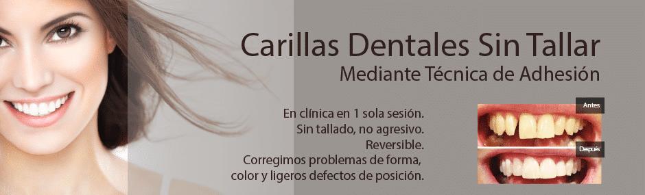 Carillas dentales composite o porcelana
