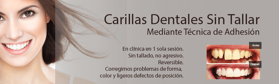 Carillas sin tallado Top Smile Madrid