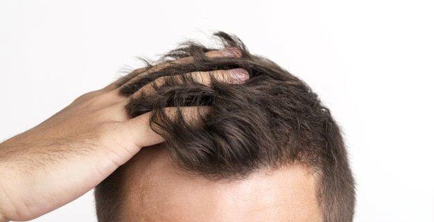 ¿Cuáles son las causas de la caída del pelo en los hombres?