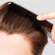 Tratamiento con células madre para la alopecia
