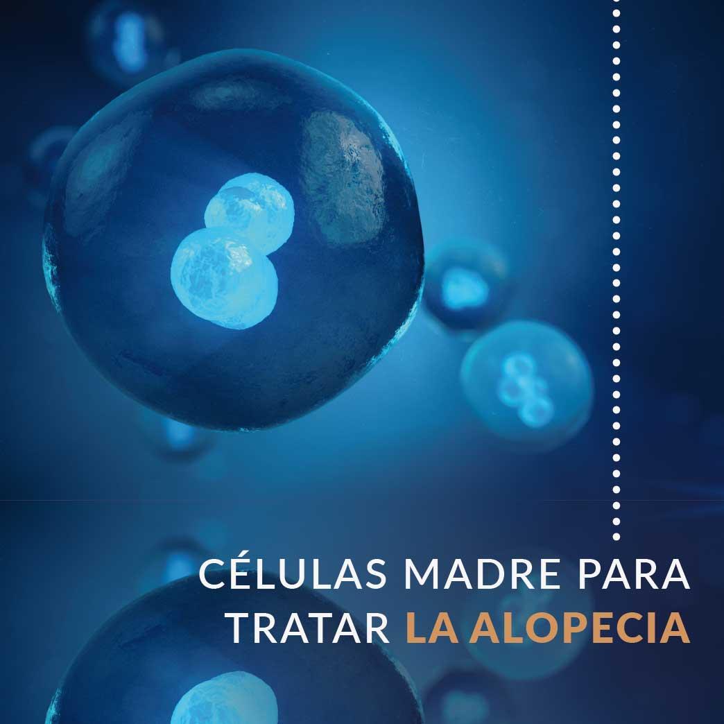 celulas madre para alopecia