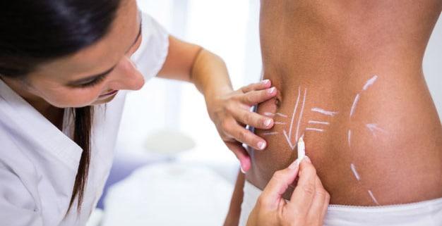Tratamiento con cirugía abdominal
