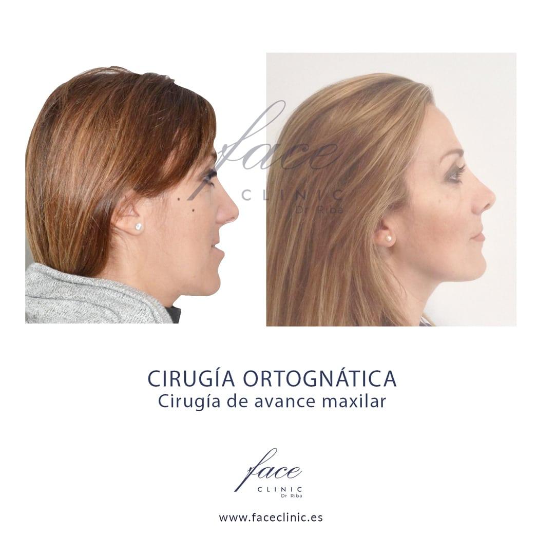 Cirugia de avance maxilar superior