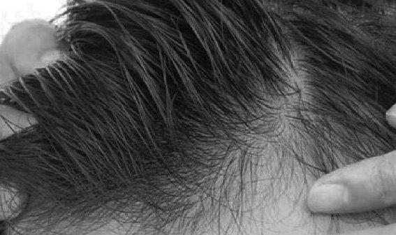 Cirugía Avanzada en Face Clinic Madrid