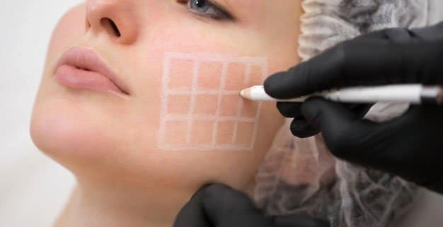La cirugia del contorno facial