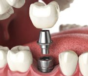 La Cirugia Estetica dental