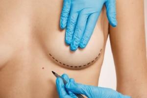 Cirugía Estética mamaria en Valladolid