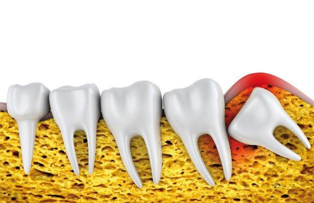 Cirugia Oral tratamiento