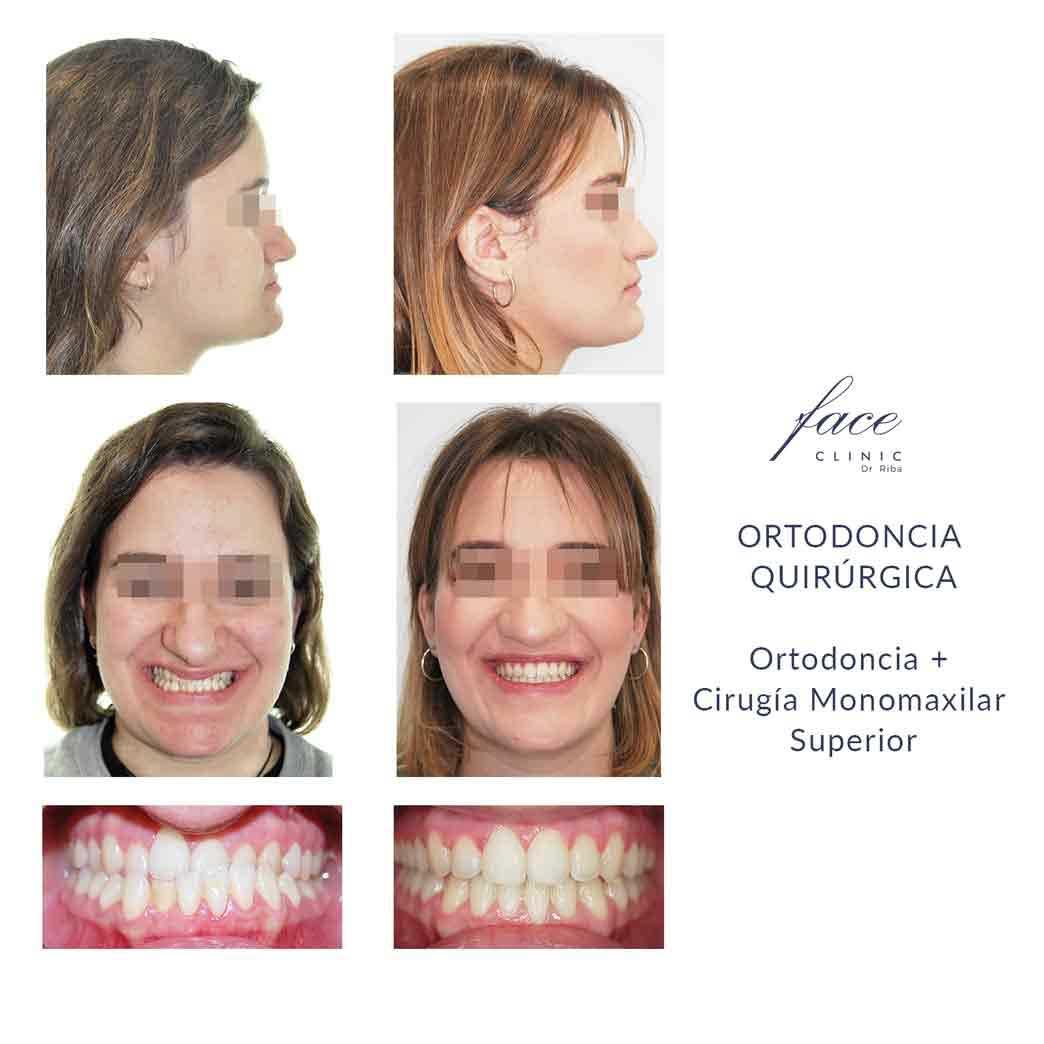 Resultados de una Cirugía Ortognática