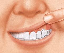La cirugia periodontal en Madrid