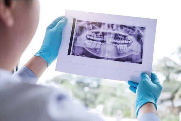 Indicaciones para una Cirugía Preprotésica