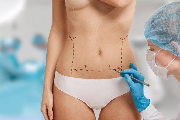 Cirujano plastico especialista en corporal