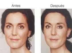 El Acido hialuronico antes - después