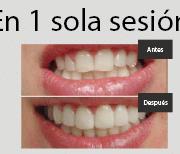 Clinica de estetica dental en Madrid